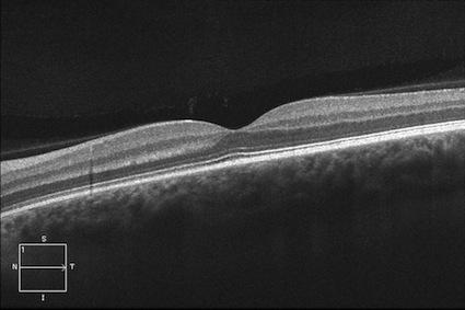 macular oct